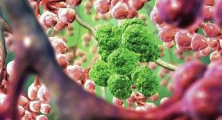 Τέλος οι χημειοθεραπείες! Αυτή είναι η νέα μέθοδός καταπολέμησης του καρκίνου…