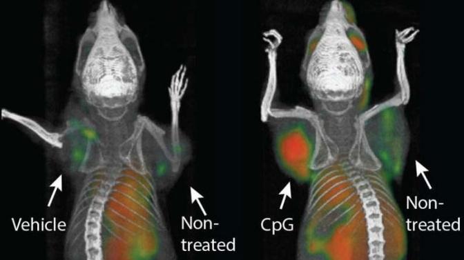 Aντικαρκινική ανοσοθεραπεία εξαφάνισε όλους τους όγκους σε πειραματόζωα, ακόμη και τις μεταστάσεις