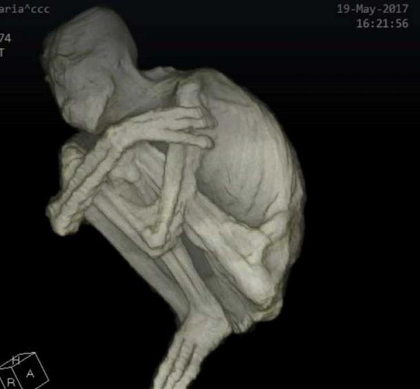 CAT-scan-image