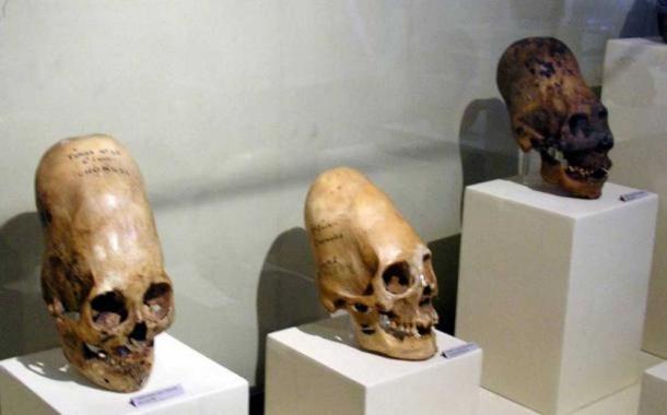 Elongated-skulls-on-display